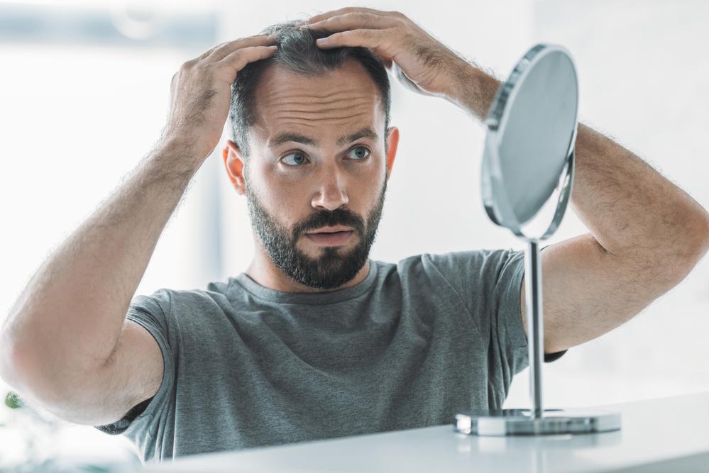 a man checks his hair loss in a mirror