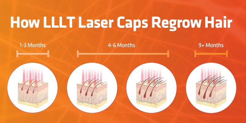 How LLLT Works to Regrow Hair